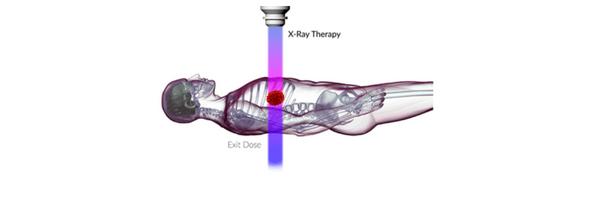 traditional radiation treatment